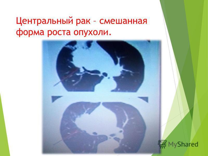 Центральный рак – смешанная форма роста опухоли.