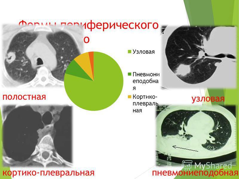 Формы периферического рака легкого полостная кортико-плевральная узловая пневмониеподобная
