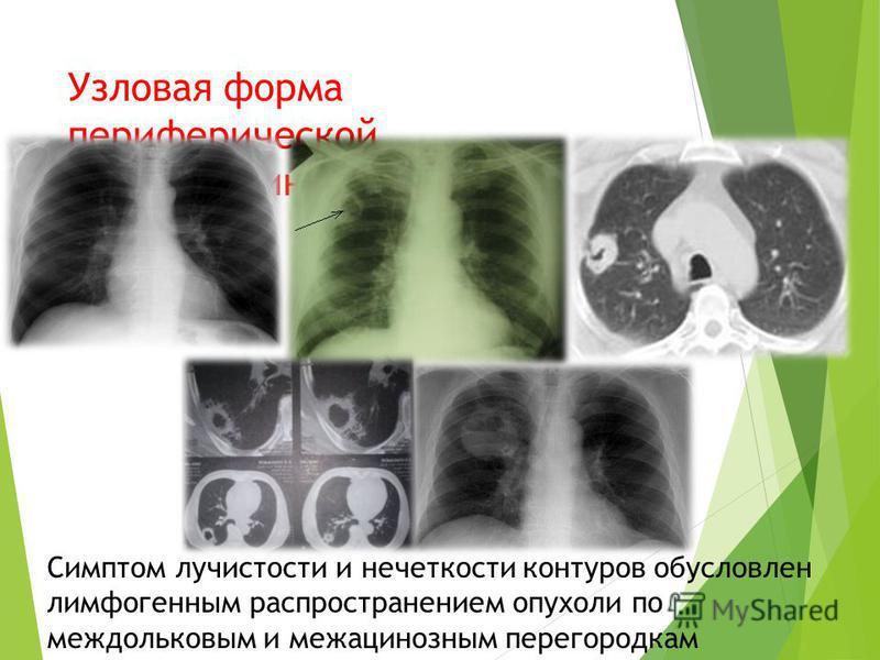 Узловая форма периферической аденокарциномы легкого Симптом лучистости и нечеткости контуров обусловлен лимфогенным распространением опухоли по междольковым и межацинозным перегородкам