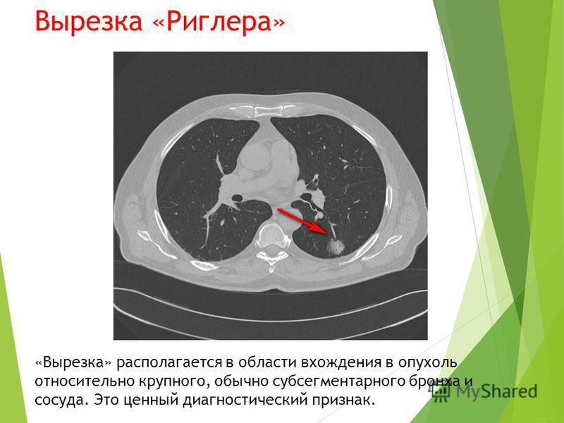 Вырезка «Риглера» «Вырезка» располагается в области вхождения в опухоль относительно крупного, обычно суп сегментарного бронха и сосуда. Это ценный диагностический признак.