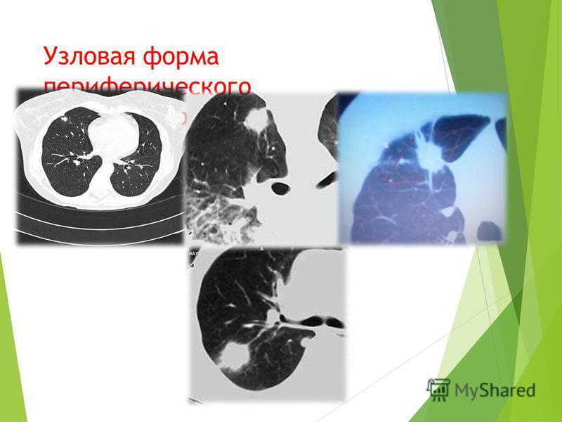 Узловая форма периферического плоскоклеточного рака легкого.