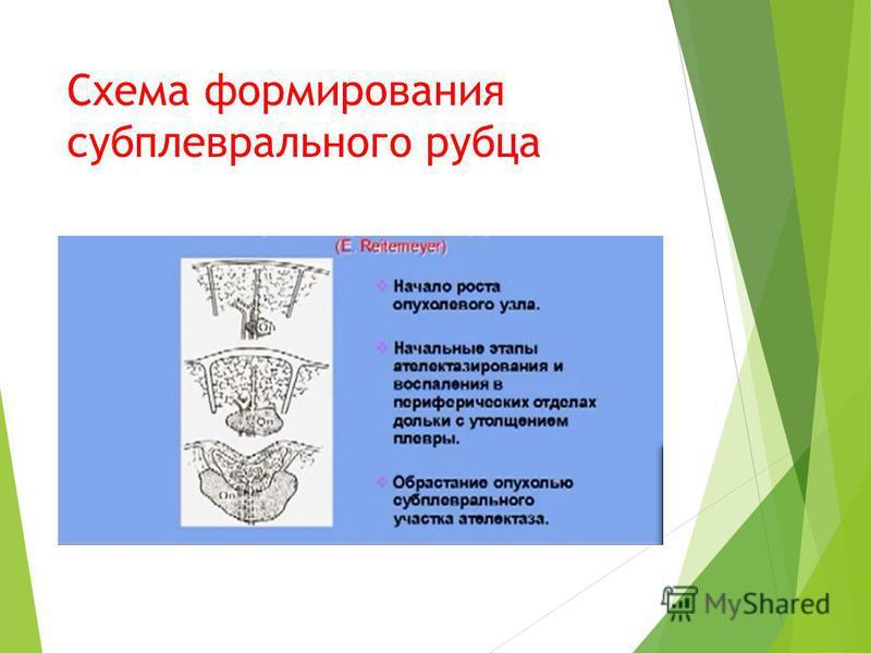 Схема формирования субплевральнойго рубца