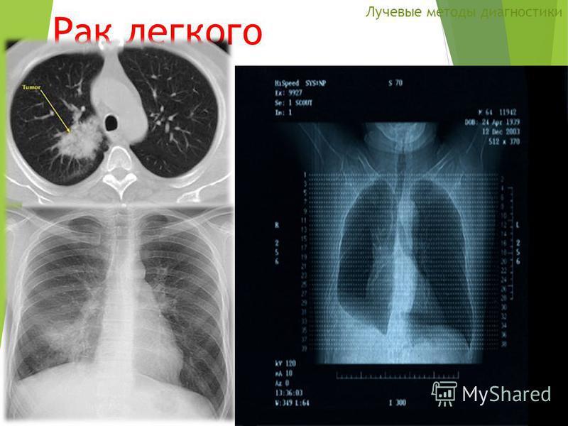 Рак легкого Лучевые методы диагностики