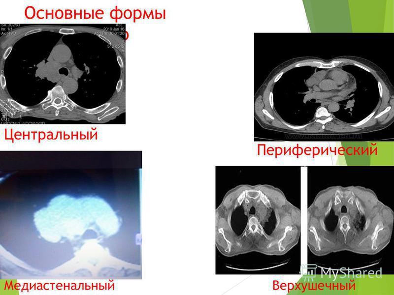 Основные формы рака легкого Центральный Периферический Медиастенальный Верхушечный