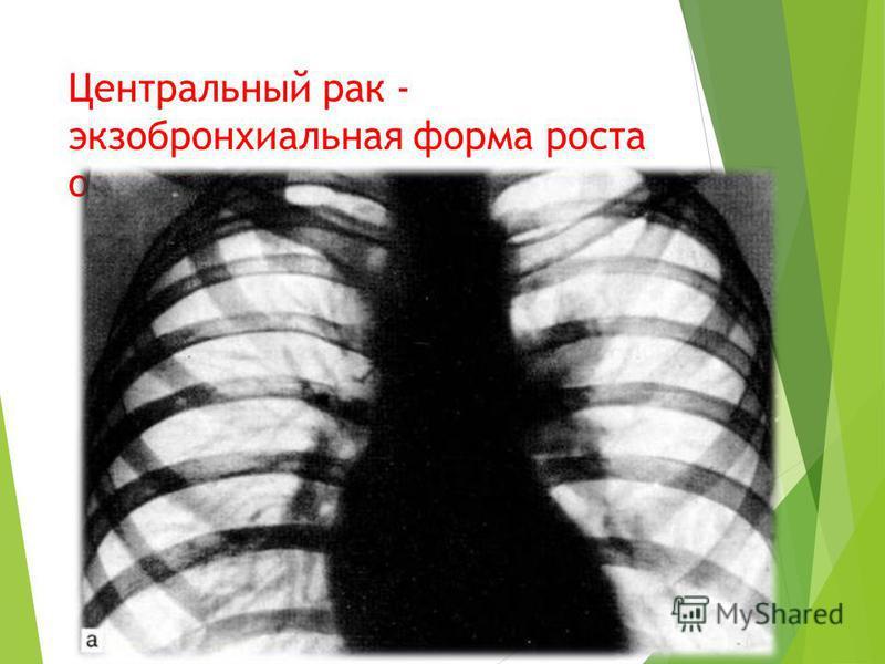 Центральный рак - экзо бронхиальная форма роста опухоли.