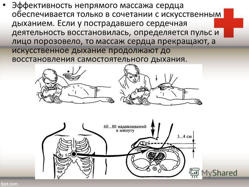 Эффективность непрямого массажа сердца обеспечивается только в сочетании с искусственным дыханием. Если у пострадавшего сердечная деятельность восстановилась, определяется пульс и лицо порозовело, то массаж сердца прекращают, а искусственное дыхание