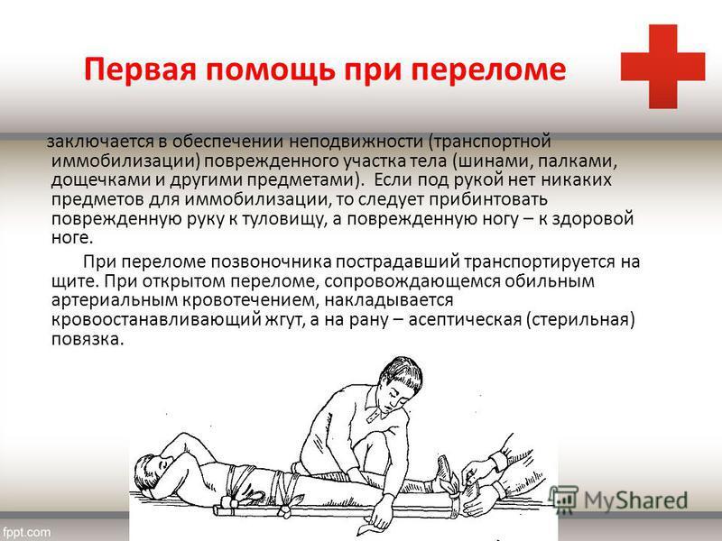 Первая помощь при переломе заключается в обеспечении неподвижности (транспортной иммобилизации) поврежденного участка тела (шинами, палками, дощечками и другими предметами). Если под рукой нет никаких предметов для иммобилизации, то следует прибинтов