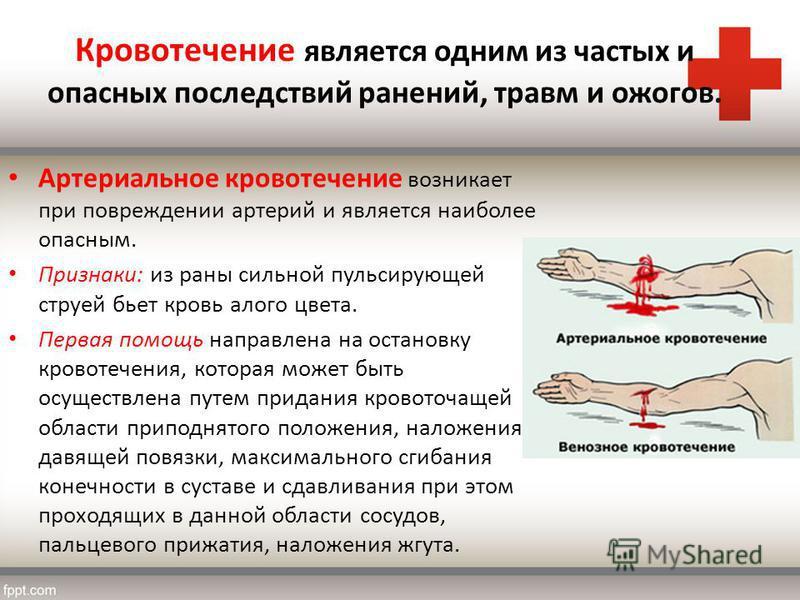 Кровотечение является одним из частых и опасных последствий ранений, травм и ожогов. Артериальное кровотечение возникает при повреждении артерий и является наиболее опасным. Признаки: из раны сильной пульсирующей струей бьет кровь алого цвета. Первая