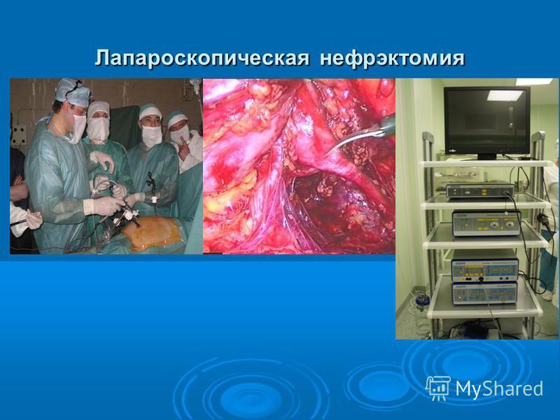 Лапароскопическая нефрэктомия