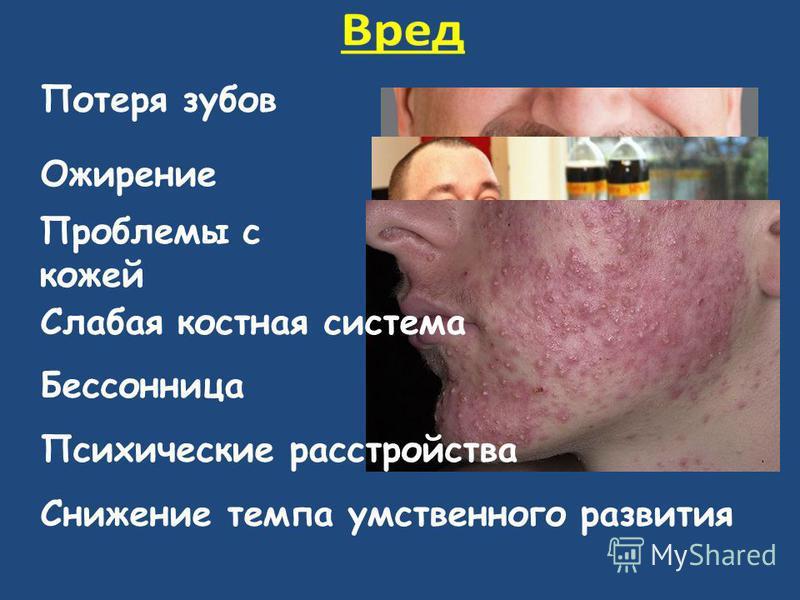 Потеря зубов Ожирение Проблемы с кожей Слабая костная система Бессонница Психические расстройства Снижение темпа умственного развития