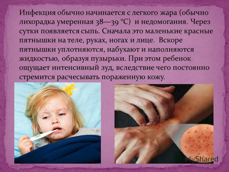 Инфекция обычно начинается с легкого жара (обычно лихорадка умеренная 3839 °С) и недомогания. Через сутки появляется сыпь. Сначала это маленькие красные пятнышки на теле, руках, ногах и лице. Вскоре пятнышки уплотняются, набухают и наполняются жидкос