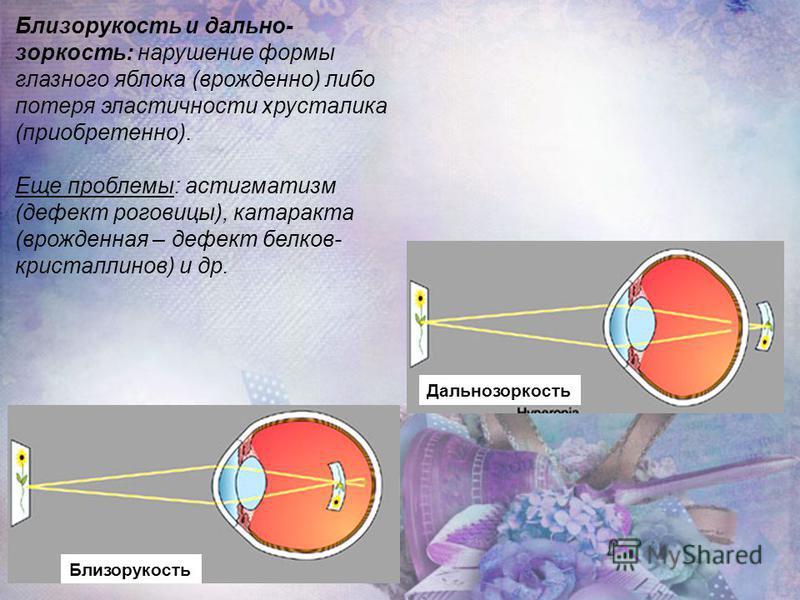 Близорукость и дальнозоркость: нарушение формы глазного яблока (врожденно) либо потеря эластичности хрусталика (приобретено). Еще проблемы: астигматизм (дефект роговицы), катаракта (врожденная – дефект белков- кристаллинов) и др. Близорукость Дальноз