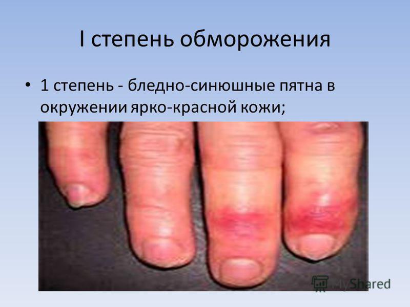 I степень обморожения 1 степень - бледно-синюшные пятна в окружении ярко-красной кожи;
