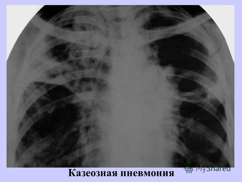 Казеозная пневмония