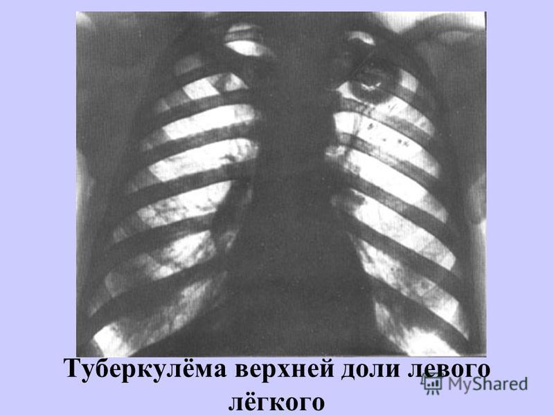 Туберкулёма верхней доли левого лёгкого