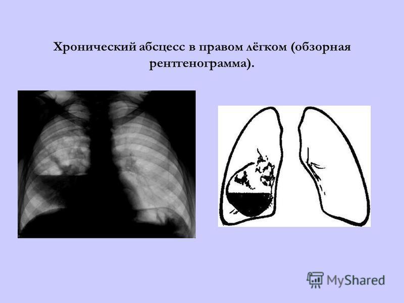 Хронический абсцесс в правом лёгком (обзорная рентгенограмма).