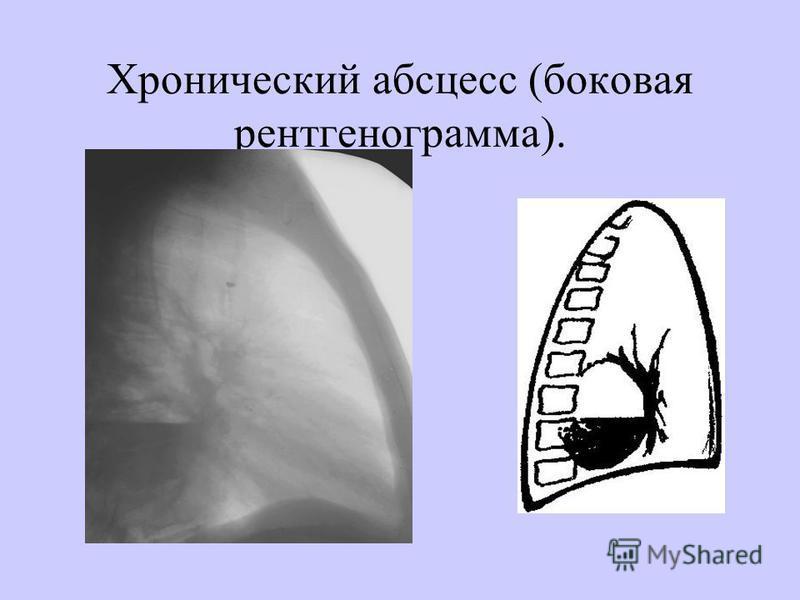 Хронический абсцесс (боковая рентгенограмма).
