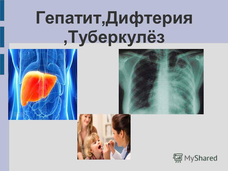 Гепатит,Дифтерия,Туберкулёз