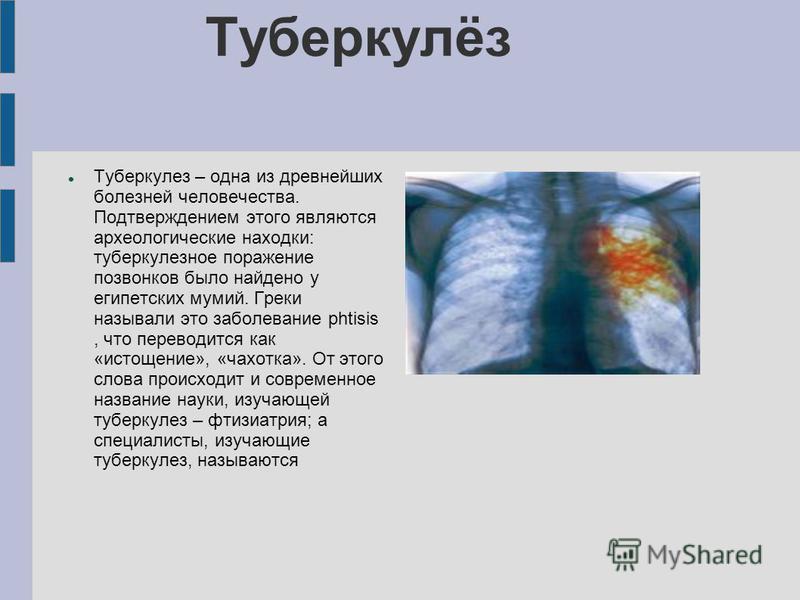 Туберкулёз Туберкулез – одна из древнейших болезней человечества. Подтверждением этого являются археологические находки: туберкулезное поражение позвонков было найдено у египетских мумий. Греки называли это заболевание phtisis, что переводится как «и