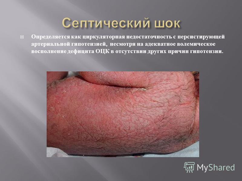 Определяется как циркуляторная недостаточность с персистирующей артериальной гипотензией, несмотря на адекватное полемическое восполнение дефицита ОЦК в отсутствии других причин гипотензии.