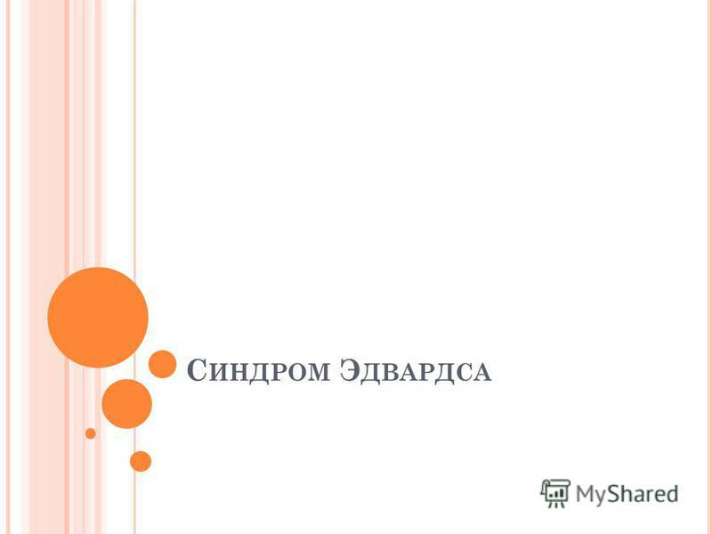 С ИНДРОМ Э ДВАРДСА