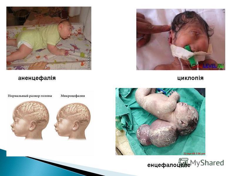 аненцефаліяциклопія енцефалоцеле