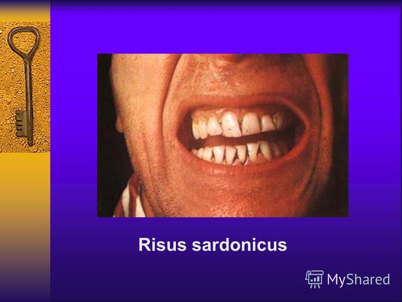 Risus sardonicus