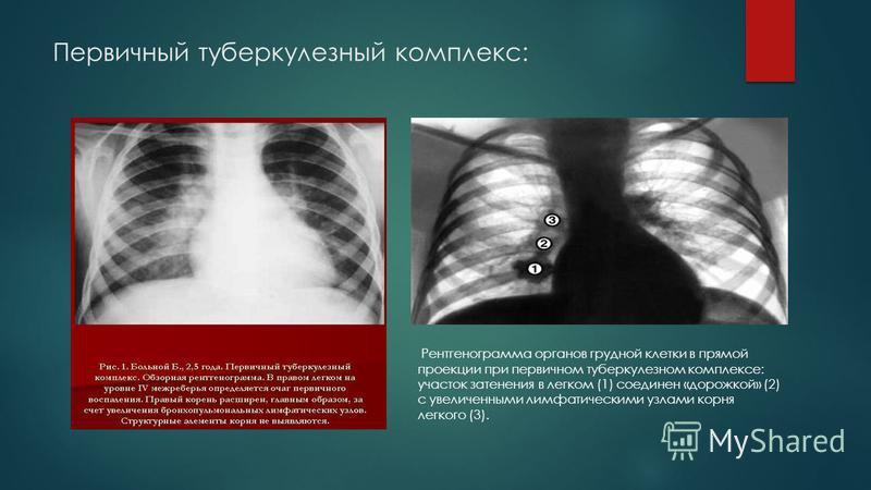 Первичный туберкулезный комплекс: Рентгенограмма органов грудной клетки в прямой проекции при первичном туберкулезном комплексе: участок затенения в легком (1) соединен «дорожкой» (2) с увеличенными лимфатическими узлами корня легкого (3).