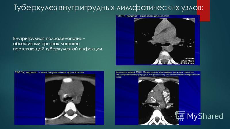 Туберкулез внутригрудных лимфатических узлов: Внутригрудная полиаденопатия – объективный признак латентно протекающей туберкулезной инфекции.