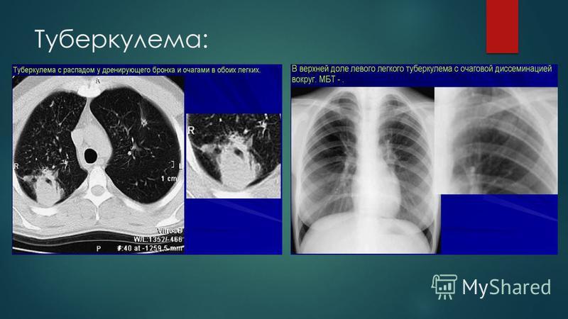 Туберкулема: