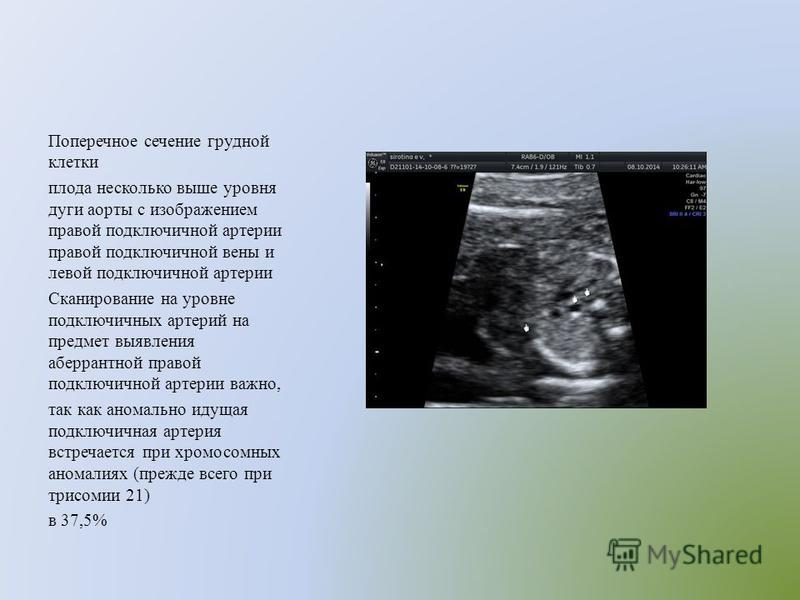 Поперечное сечение грудной клетки плода несколько выше уровня дуги аорты с изображением правой подключичной артерии правой подключичной вены и левой подключичной артерии Сканирование на уровне подключичных артерий на предмет выявления аберрантной пра
