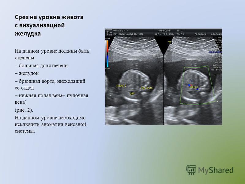 Срез на уровне живота с визуализацией желудка На данном уровне должны быть оценены: – большая доля печени – желудок – брюшная аорта, нисходящий ее отдел – нижняя полая вена– пупочная вена) (рис. 2). На данном уровне необходимо исключить аномалии вено