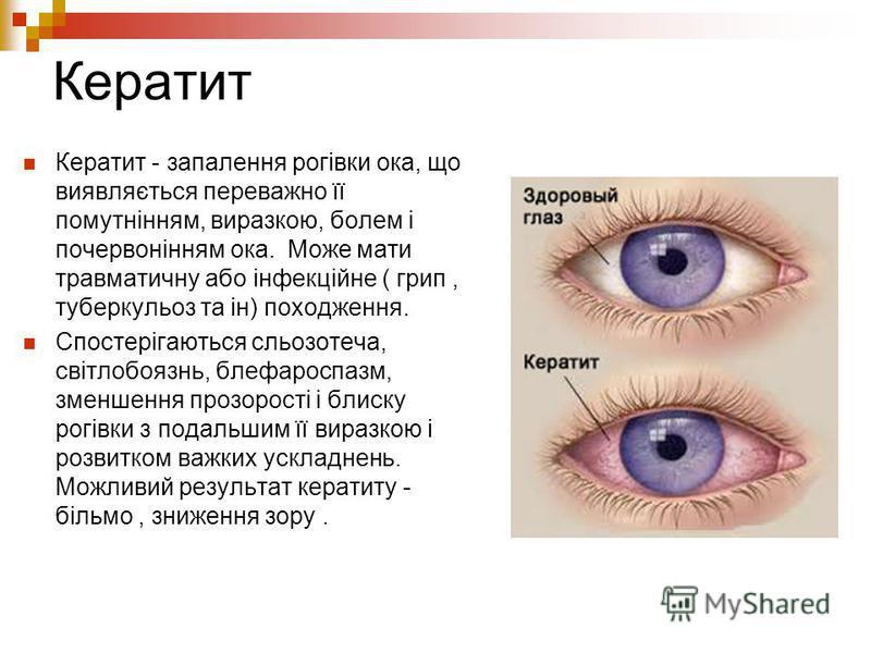 Кератит Кератит - запалення рогівки ока, що виявляється переважно її помутнінням, виразкою, болем і почервонінням ока. Може мати травматичну або інфекційне ( грип, туберкульоз та ін) походження. Спостерігаються сльозотеча, світлобоязнь, блефароспазм,