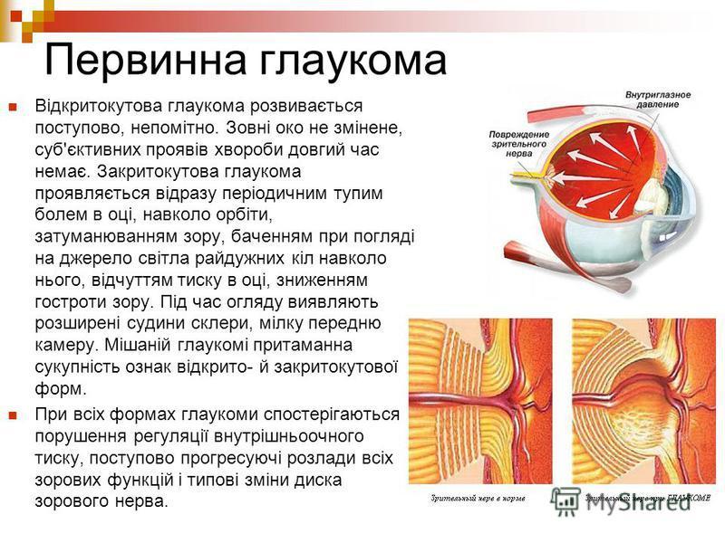 Первинна глаукома Відкритокутова глаукома розвивається поступово, непомітно. Зовні око не змінене, суб'єктивних проявів хвороби довгий час немає. Закритокутова глаукома проявляється відразу періодичним тупим болем в оці, навколо орбіти, затуманювання