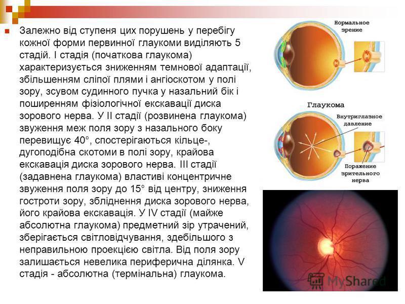 Залежно від ступеня цих порушень у перебігу кожної форми первинної глаукоми виділяють 5 стадій. І стадія (початкова глаукома) характеризується зниженням темнової адаптації, збільшенням сліпої плями і ангіоскотом у полі зору, зсувом судинного пучка у