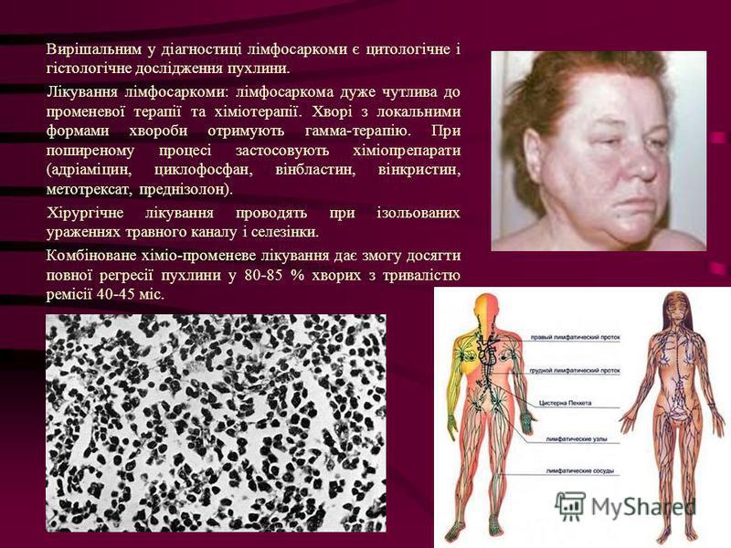 Вирішальним у діагностиці лімфосаркоми є цитологічне і гістологічне дослідження пухлини. Лікування лімфосаркоми: лімфосаркома дуже чутлива до променевої терапії та хіміотерапії. Хворі з локальними формами хвороби отримують гамма-терапію. При поширено