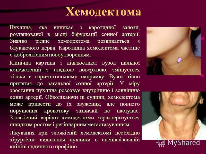 Хемодектома Пухлина, яка виникає з каротидної залози, розташованої в місці біфуркації сонної артерії. Значно рідше хемодектома розвивається з блукаючого нерва. Каротидна хемодектома частіше є доброякісним новоутворенням. Клінічна картина і діагностик