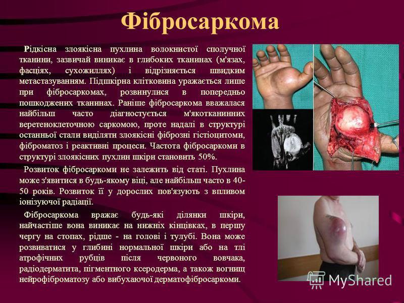 Фібросаркома Рідкісна злоякісна пухлина волокнистої сполучної тканини, зазвичай виникає в глибоких тканинах (м'язах, фасціях, сухожиллях) і відрізняється швидким метастазуванням. Підшкірна клітковина уражається лише при фібросаркомах, розвинулися в п