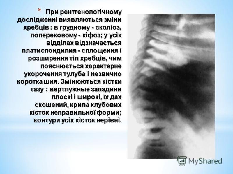 * При рентгенологічному дослідженні виявляються зміни хребців : в грудному - сколіоз, поперековому - кіфоз; у усіх відділах відзначається платиспондилия - сплощення і розширення тіл хребців, чим пояснюється характерне укорочення тулуба і незвично кор