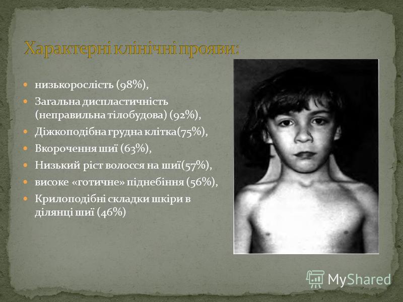 низькорослість (98%), Загальна диспластичність (неправильна тілобудова) (92%), Діжкоподібна грудна клітка(75%), Вкорочення шиї (63%), Низький ріст волосся на шиї(57%), високе «готичне» піднебіння (56%), Крилоподібні складки шкіри в ділянці шиї (46%)