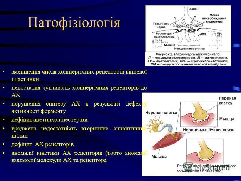 Патофізіологія зменшення числа холінергічних рецепторів кінцевої пластинки недостатня чутливість холінергічних рецепторів до АХ порушення синтезу АХ в результаті дефекту активності ферменту дефіцит ацетилхолінестерази вроджена недостатність вторинних
