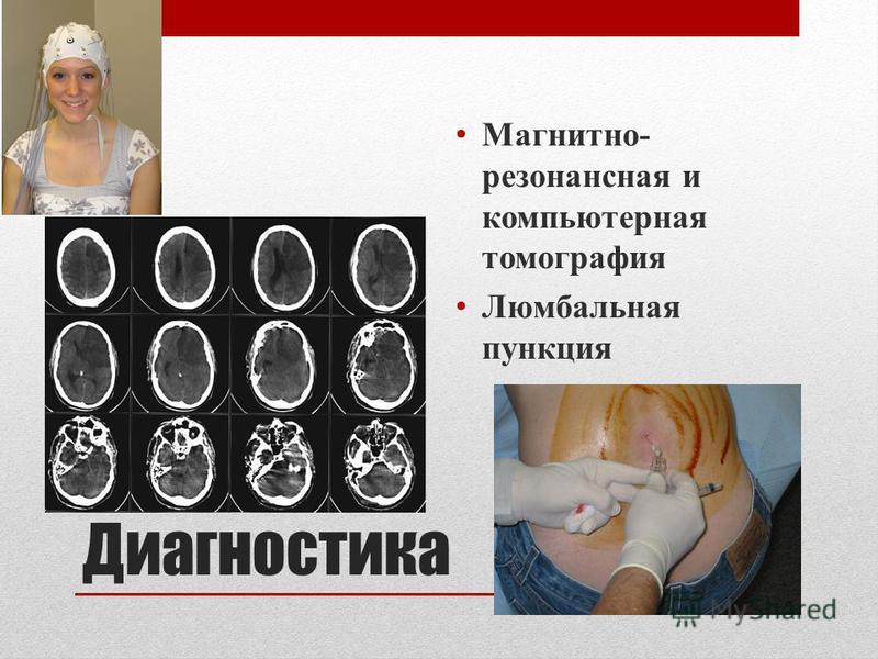 Диагностика Магнитно- резонансная и компьютерная томография Люмбальная пункция