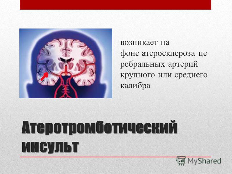Атеротромботический инсульт Атеротромботический инсульт возникает на фоне атеросклероза церебральных артерий крупного или среднего калибра