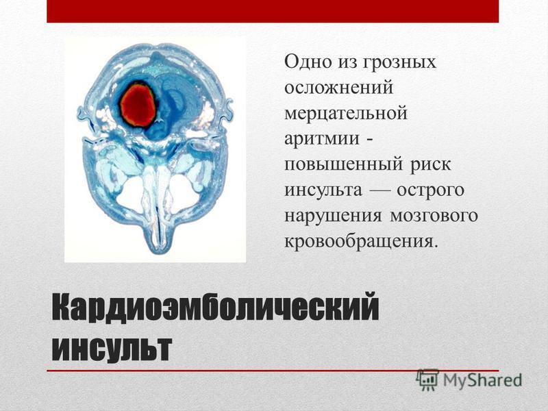 Кардиоэмболический инсульт Одно из грозных осложнений мерцательной аритмии - повышенный риск инсульта острого нарушения мозгового кровообращения.