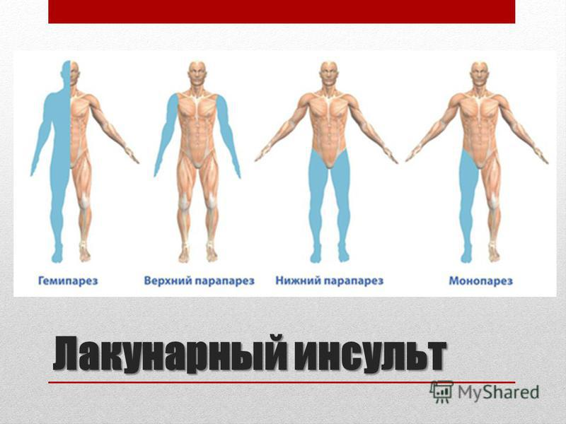 Лакунарный инсульт Лакунарный инсульт