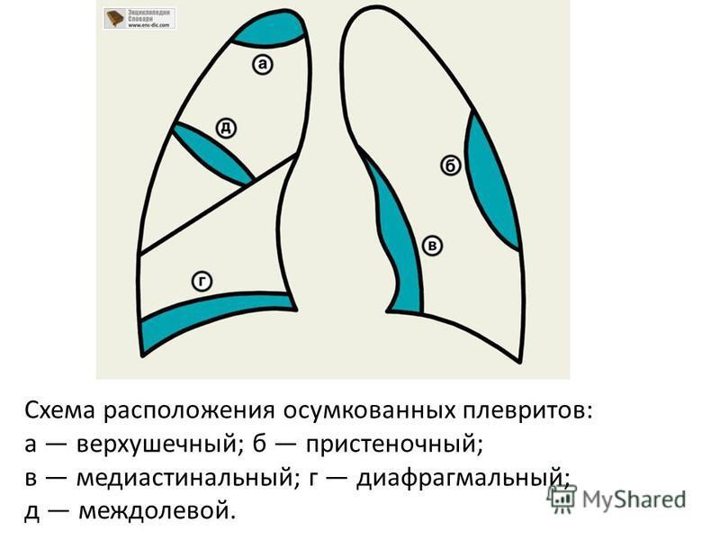 Схема расположения осумкованных плевритов: а верхушечный; б пристеночный; в медиастинальный; г диафрагмальный; д междолевой.