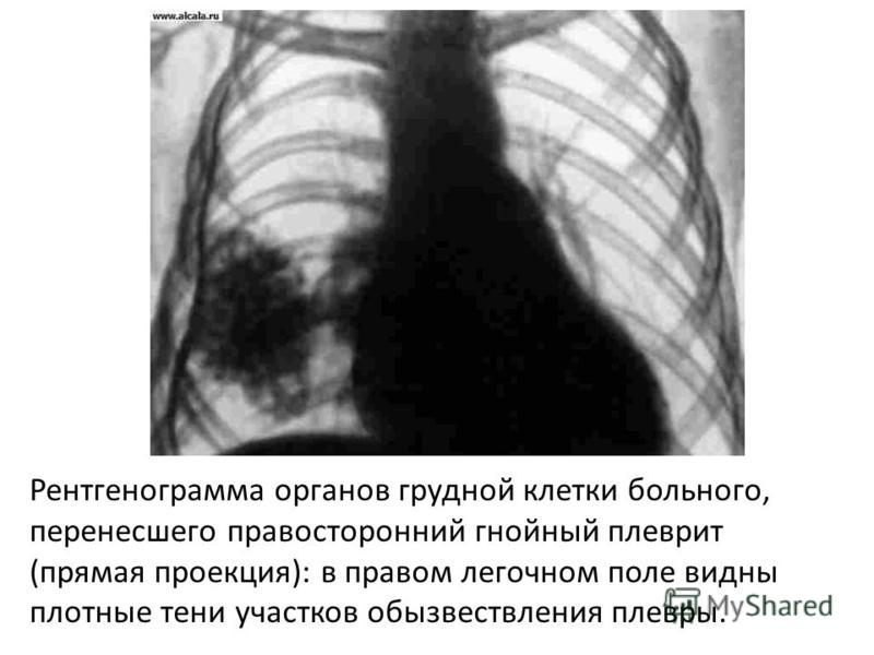Рентгенограмма органов грудной клетки больного, перенесшего правосторонний гнойный плеврит (прямая проекция): в правом легочном поле видны плотные тени участков обызвествления плевры.