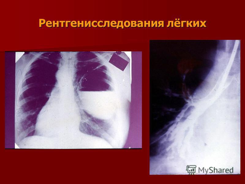 Рентгенисследования лёгких