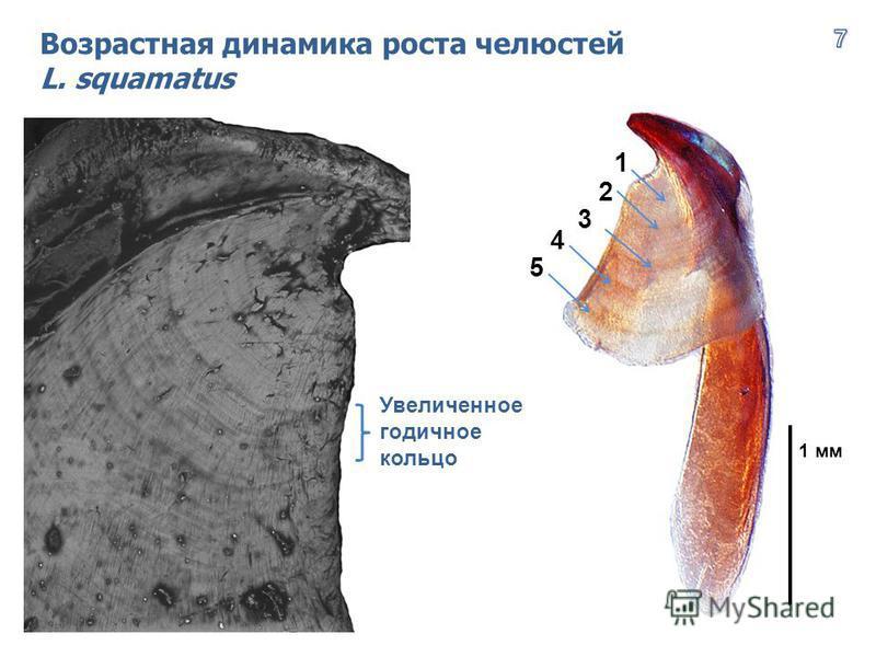 Увеличенное годичное кольцо Возрастная динамика роста челюстей L. squamatus 5 4 3 2 1 1 мм