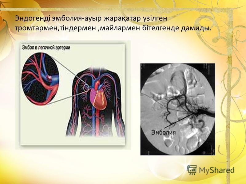 Эндогенді эмболия-ауыр жарақатар үзілген тромтармен,тіндермен,майлармен бітелгенде дамиды.